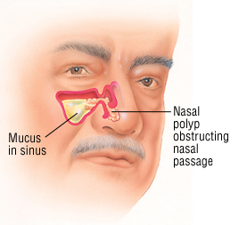 Polyps and Other Nasal Diseases