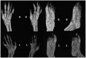 Tuberculosis of Bones