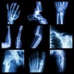 bone img