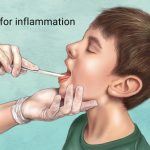 Tonsillitis, Pharyngitis, Diphtheria, and Other Throat Diseases