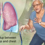 PLEURA AND LUNGS DISEASES