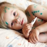 Small and Chicken Pox