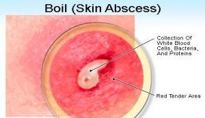 Tumors Boils Carbuncles Abscess